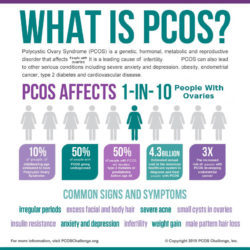 PCOS: An Introduction